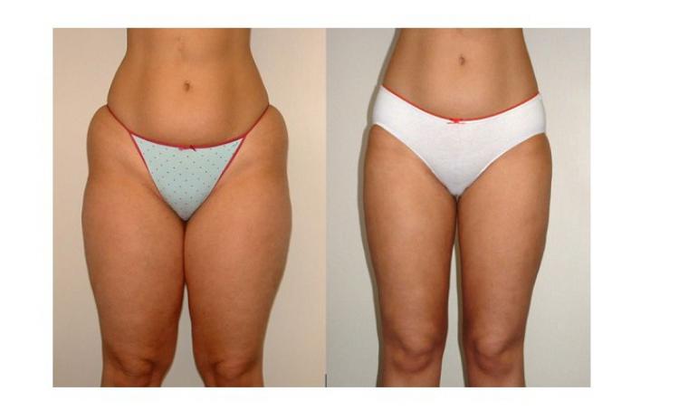 cum să scapi de pierderea de grăsime n-acetilcisteină pentru pierderea în greutate
