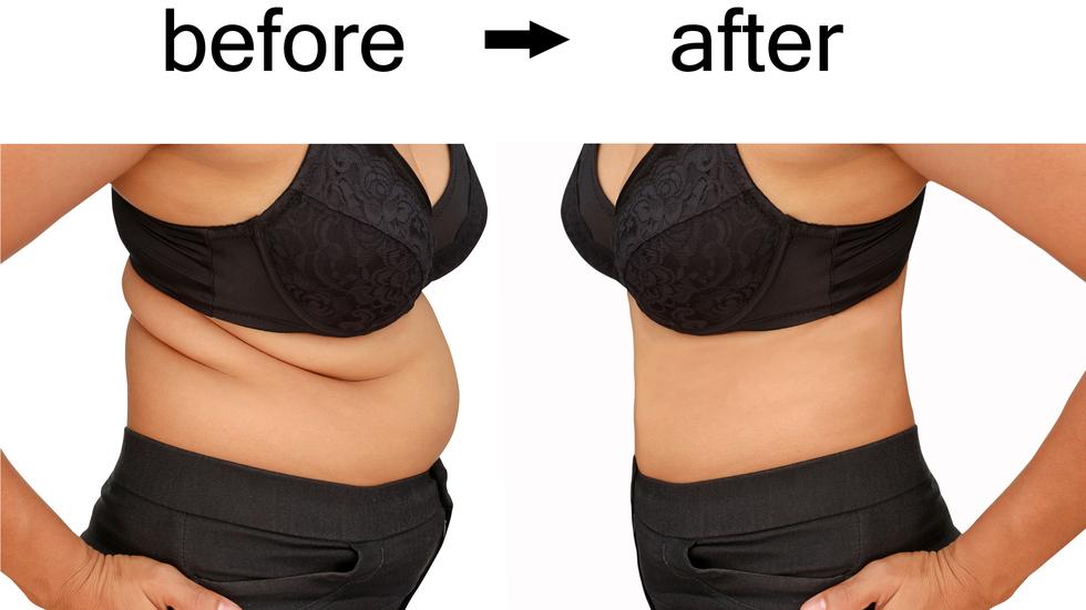 Pierdere în greutate de 30 kg în 5 luni