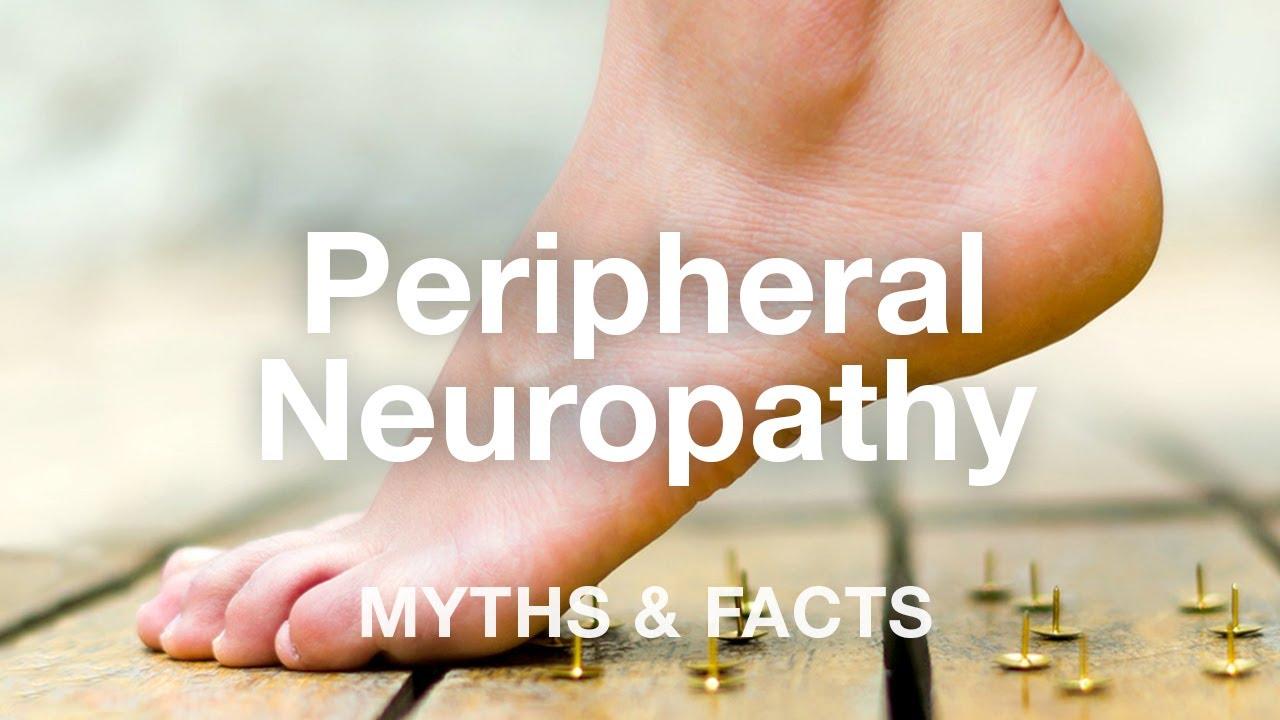 Tot ce trebuie sa stii despre neuropatia diabetica: cauze, simptome, tratament
