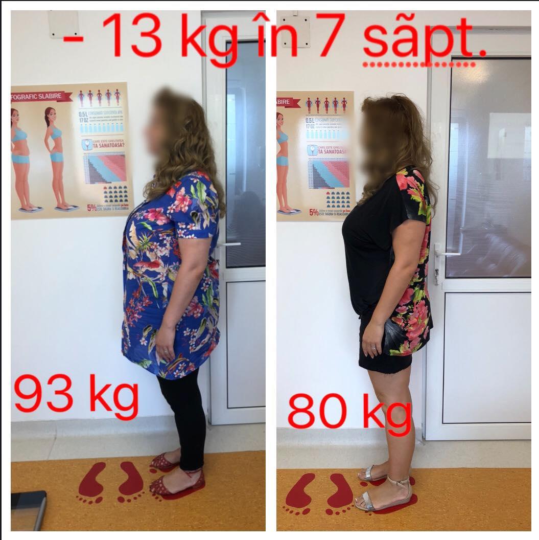 rezultate de slăbire ex lax pentru pierderea în greutate