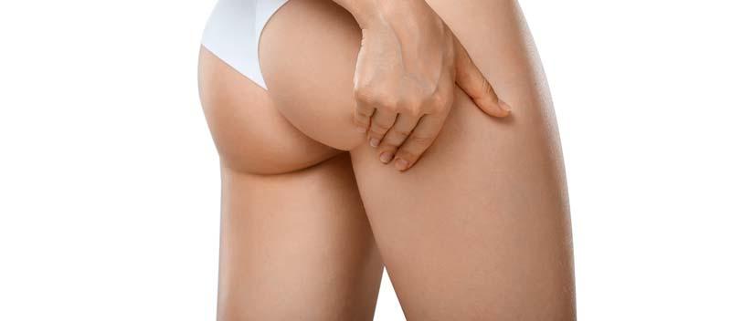cum să pierzi grăsimea corporală și celulită