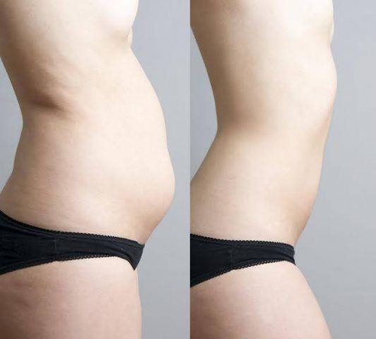 slabire trista Pierdere în greutate anorexie de 1 lună