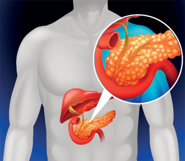 Alimente permise și de evitat dacă ai pancreatită - Sănătate Non-Stop