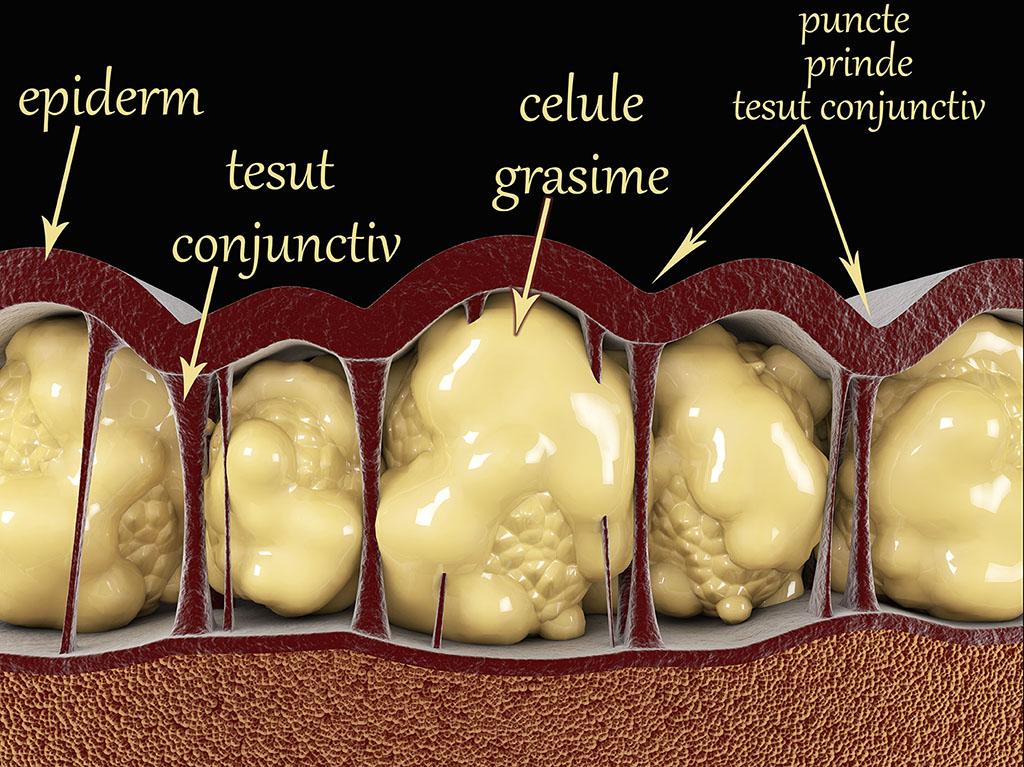 eliminați toate celulele grase