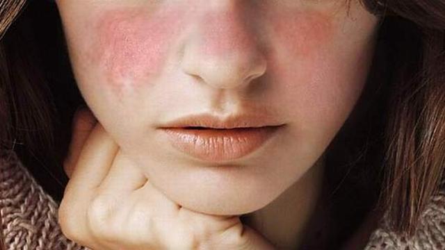 Lupusul: Simptome si diagnostic   Medlife