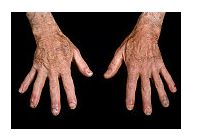 Simptomele si diagnosticul in lupusul eritematos sistemic