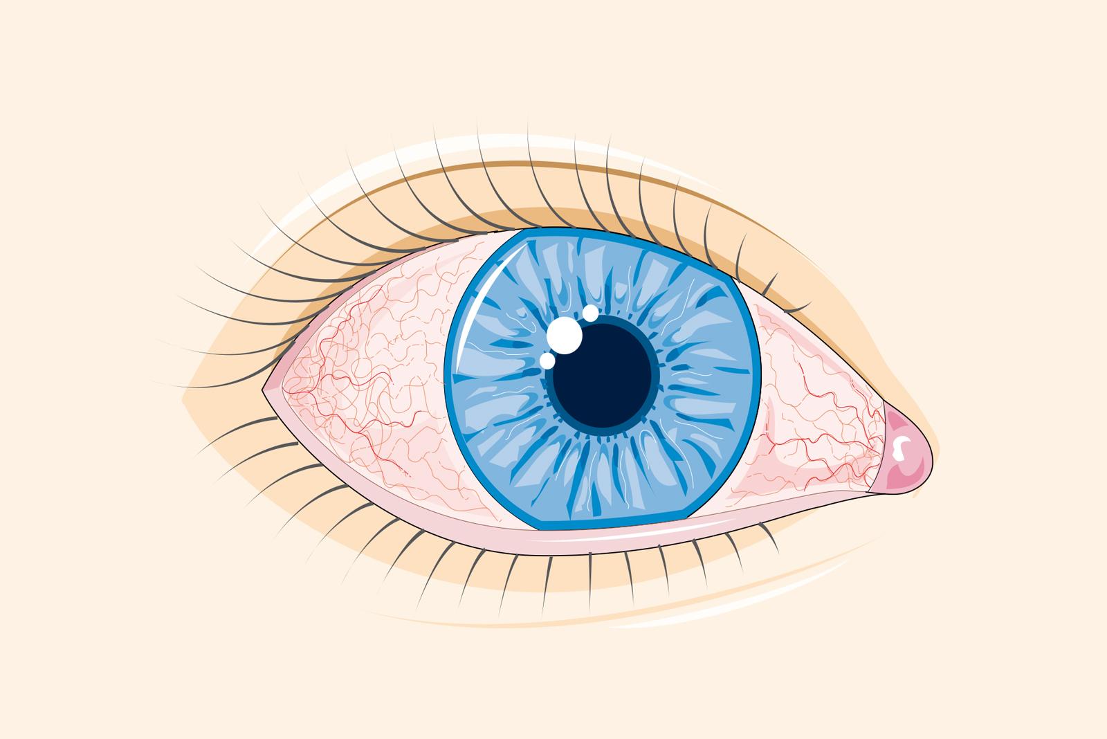 Oboseala oculară (astenopia acomodativă)