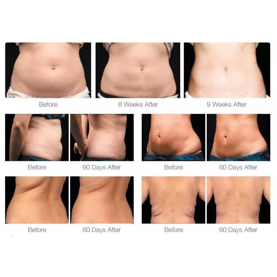 Pierdere în greutate 2 săptămâni suplimentare slăbire în eton