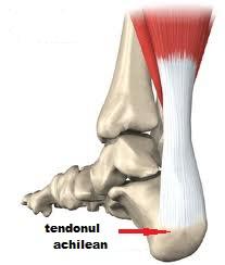 Afectiuni ale tendonului lui Achile