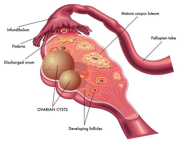 Efecte posibile ale chisturilor ovariene - Lipom November