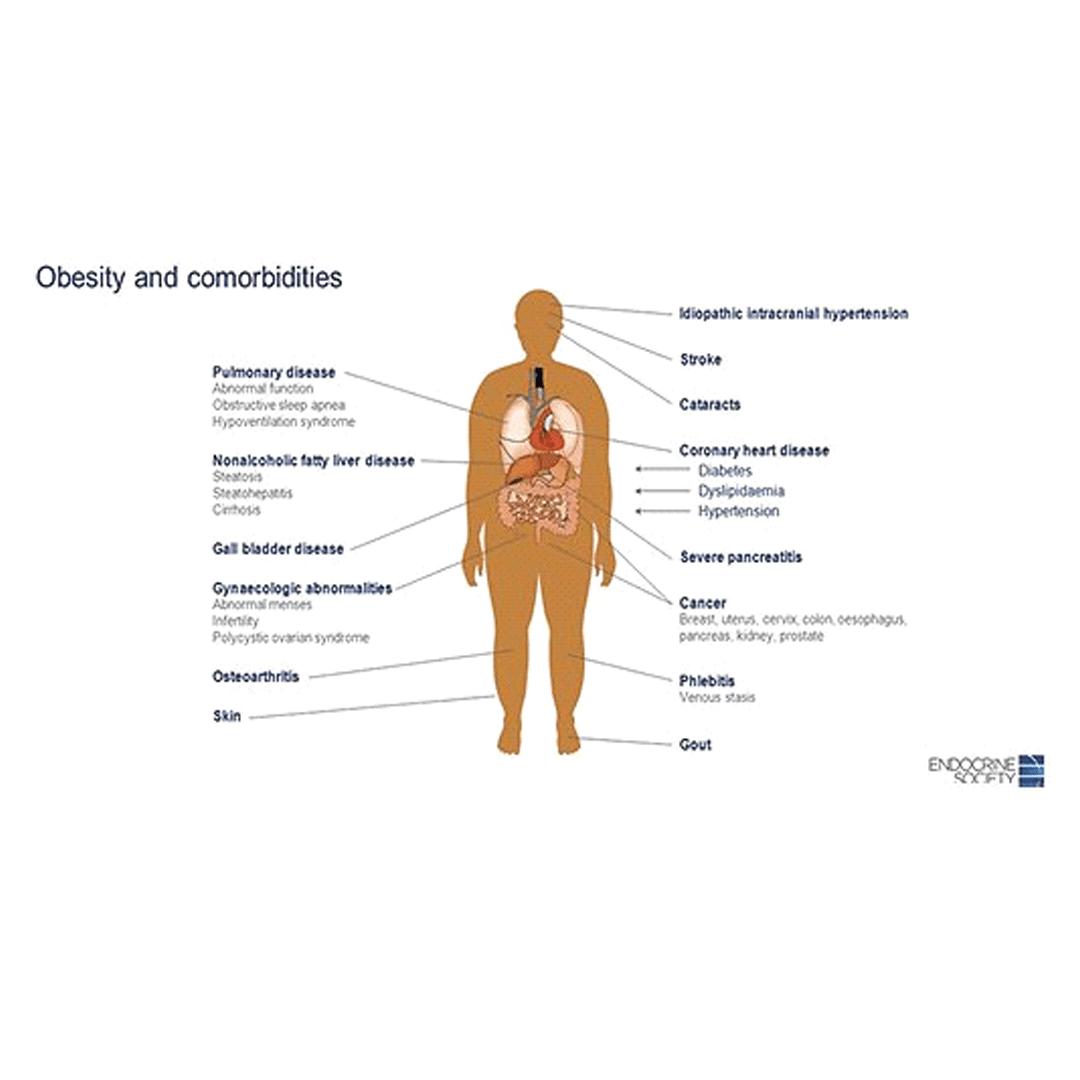 Gradele de obezitate - Hipoglicemia