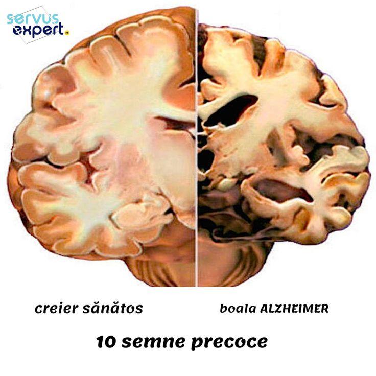 Un medicament revolutionar favorizeaza pierderea in greutate si previne maladia Alzheimer