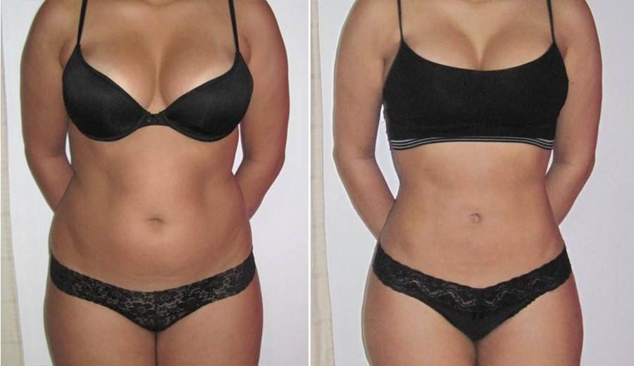 pierdere în greutate sinergie reno slabire mustang