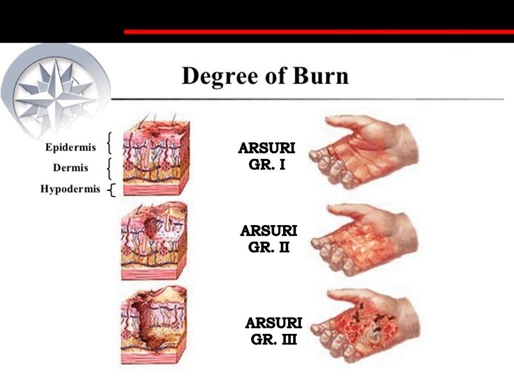 Spumă Premium pentru curăţarea petelor de arsuri