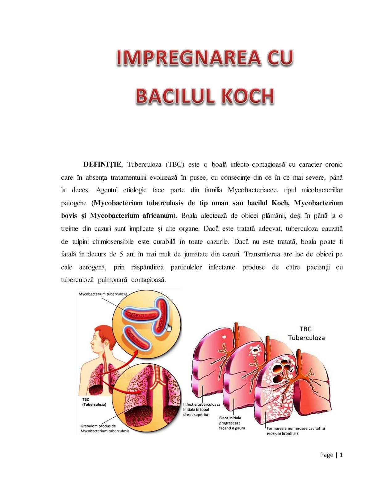 Tuberculoza: Factori de risc, diagnostic, tratament, preventie | Bioclinica