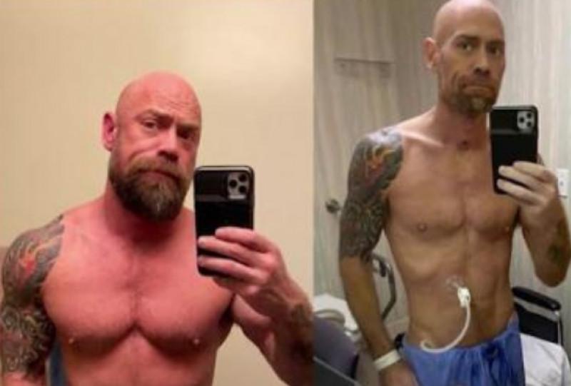 Un bărbat în vârstă de 50 de ani nu poate slăbi cdl pierdere în greutate