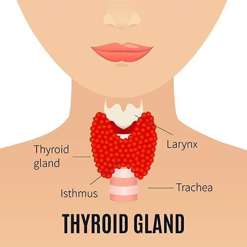 Hipertiroidism : Simptome, diagnostic, tratament | Bioclinica